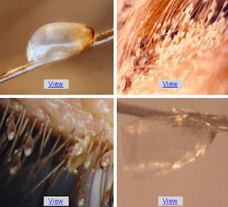 How to Remove Head Lice Eggs