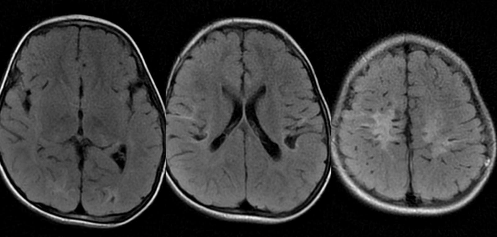 Dr Balaji Anvekars Neuroradiology Cases Global Cerebral Hypoxia