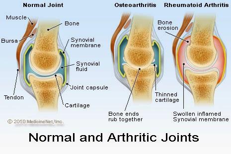 rheumatic tips