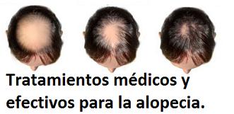 Todas las causas de la alopecia a las mujeres