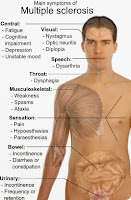 CLinical Manifestations Signs Symptoms Multiple Sclerosis Medical health Treatment Therapy