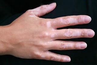 Cara Menyembuhkan Vitiligo Secara Alami