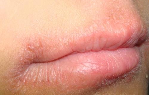 Ricerche correlate a Screpolatura ai lati della bocca