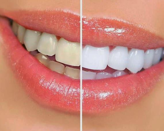 Cara Memutihkan Gigi Secara Mudah dan Alami