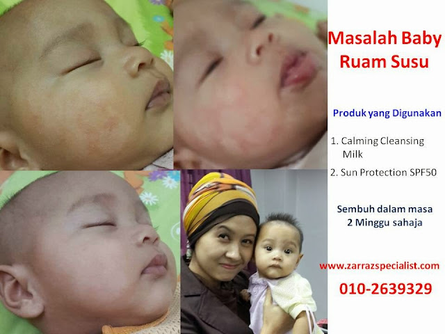 rawatan baby eczema, rawatan baby ruam susu