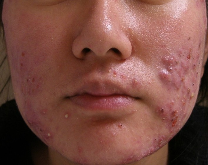 p stav acne