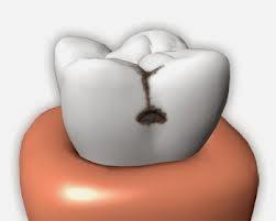 Penyebab Gigi Berlubang Dan Cara Mengatasi Gigi Berlubang