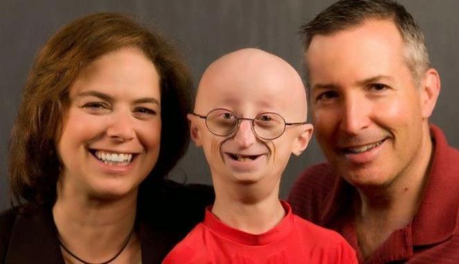 Ciri-Ciri Penderita Progeria (Tua Sebelum Waktunya)