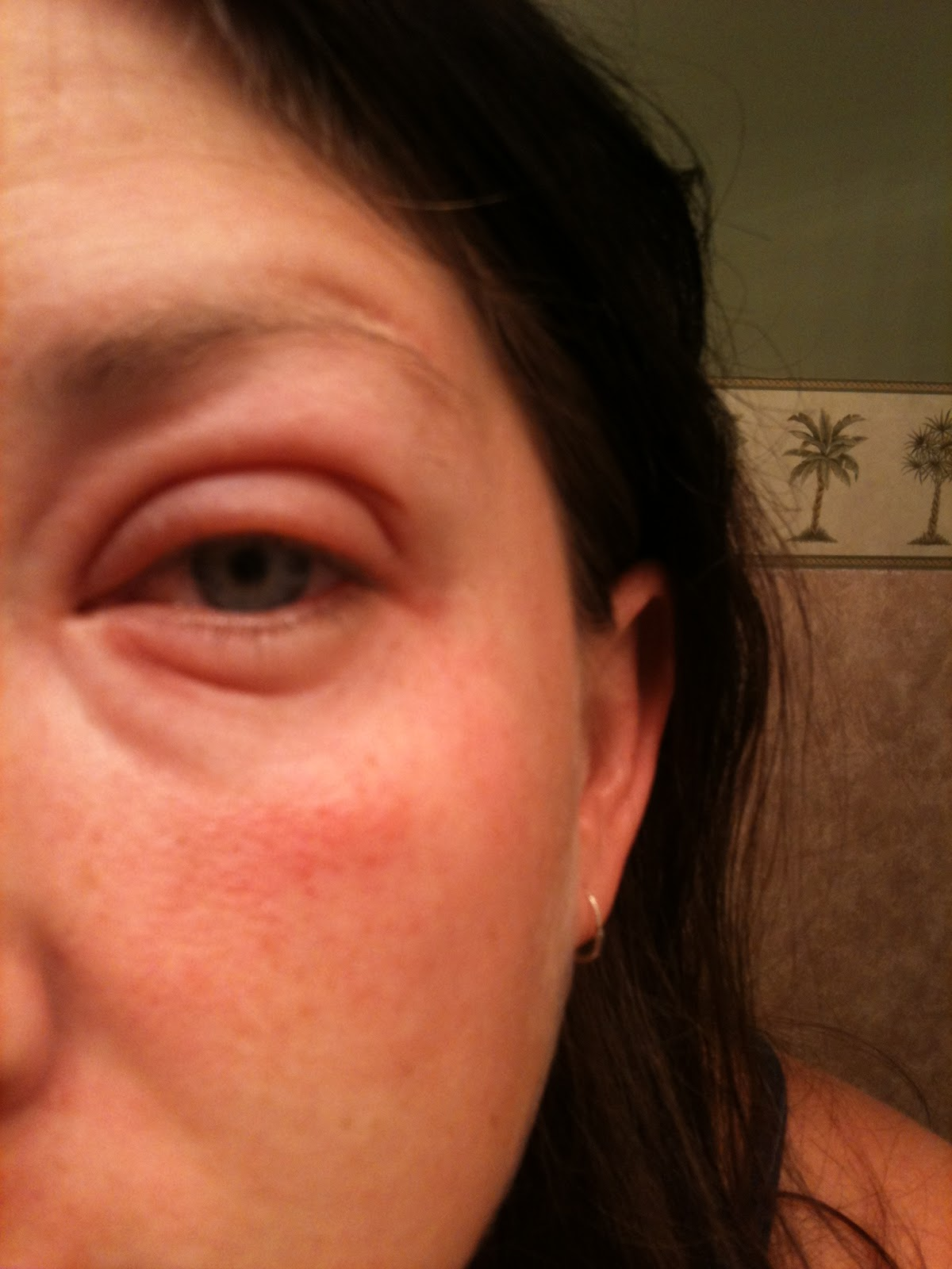how to clear up broken blood vessels in eye