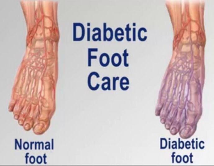 The Do's and Don'ts of Diabetic Foot Care   Nutriclue