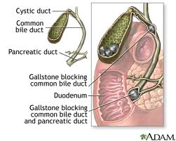 Gall Bladder Disease - What Are the Causes