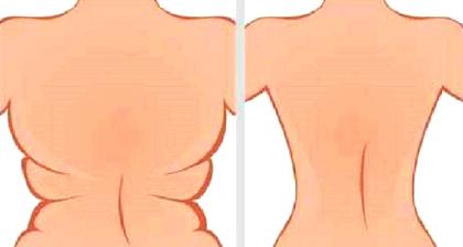 4-Ejercicios-rápidos-para-deshacerse-de-las-axilas-Flab-Y-Negro-Bulge-En-3-Semanas