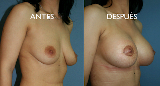mastopexia_elevación_pecho_cirujano_plastico