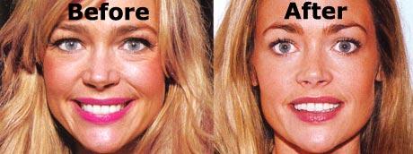 Dawn Richards Plastic Surgery