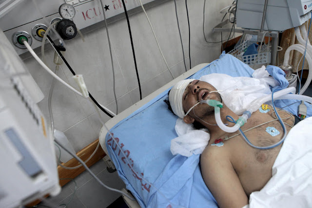 Palestino sofre de grave trumatismo craniano -  ataque israelense