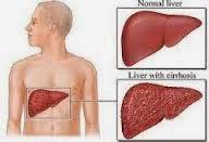 Cara Tercepat Menyembuhkan Penyakit Hepatitis B Akut