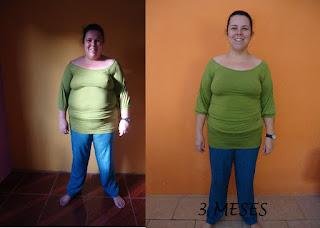 suziane burguez proença dieta obesidade antes e depois gastroplastia