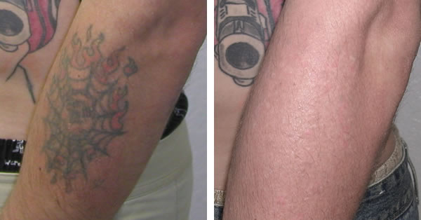 Laser tattoo removal before and after pictures tattoo for Best tattoo removal laser