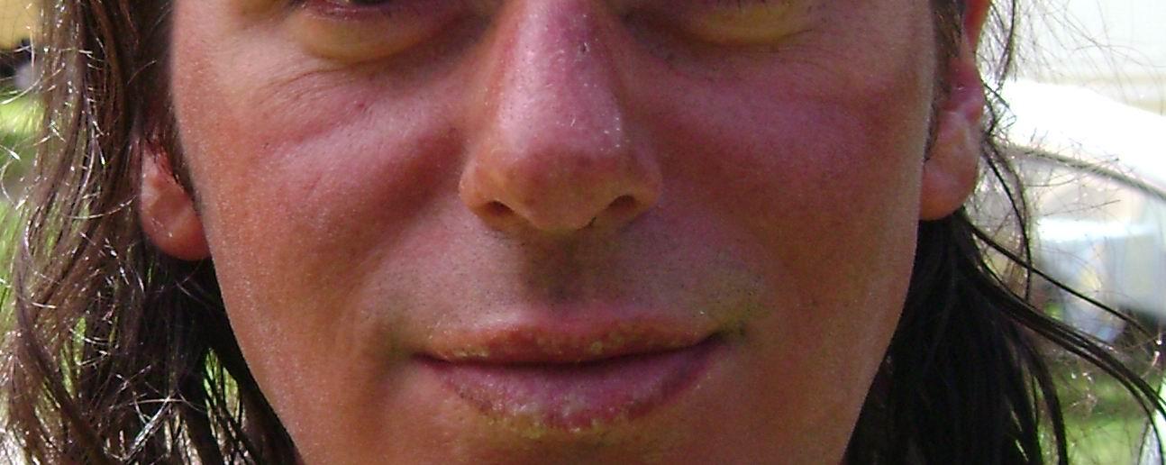 fata umflata de la dinti