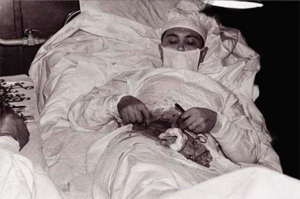 Леонид Рогозов во время операции по удалению аппендицита
