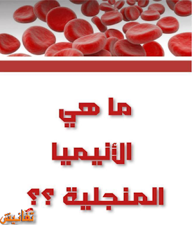 الانيميا المنجلية فقر الدم المنجلي