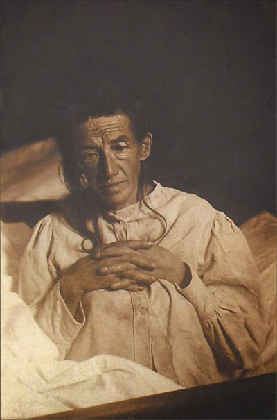 Photograph of Auguste Deter, the first patient to be diagnosed with Alzheimer's Disease