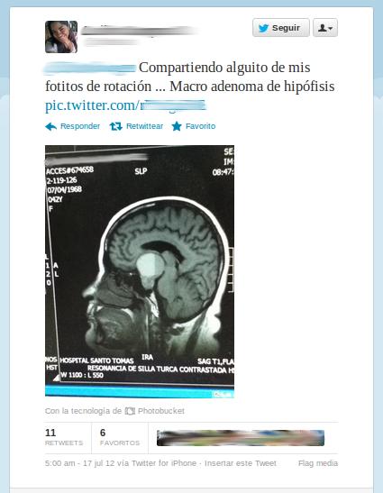 Tweet de la estudiante que compartió la radiografía