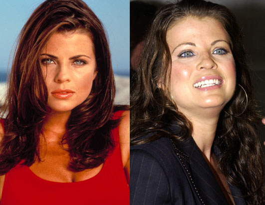 In an issue of Glamour from April 2003  Yasmine Bleeth wrote a three    Yasmine Bleeth Nose Before After