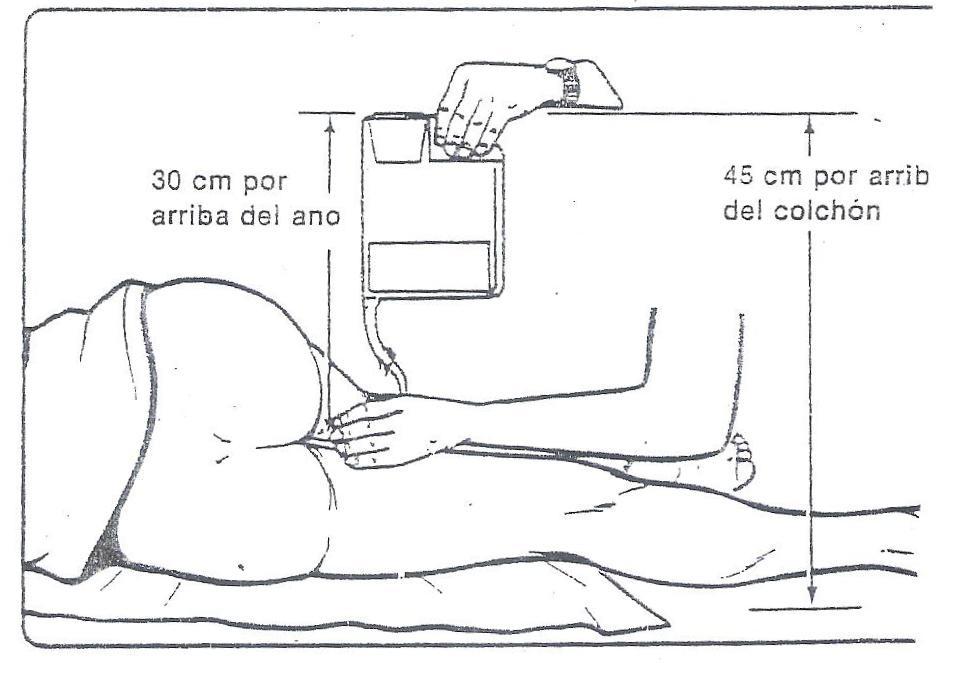 Baño General Del Paciente En Cama:CLASES FUNDAMENTOS DE ENFERMERIA: Enema Evacuante