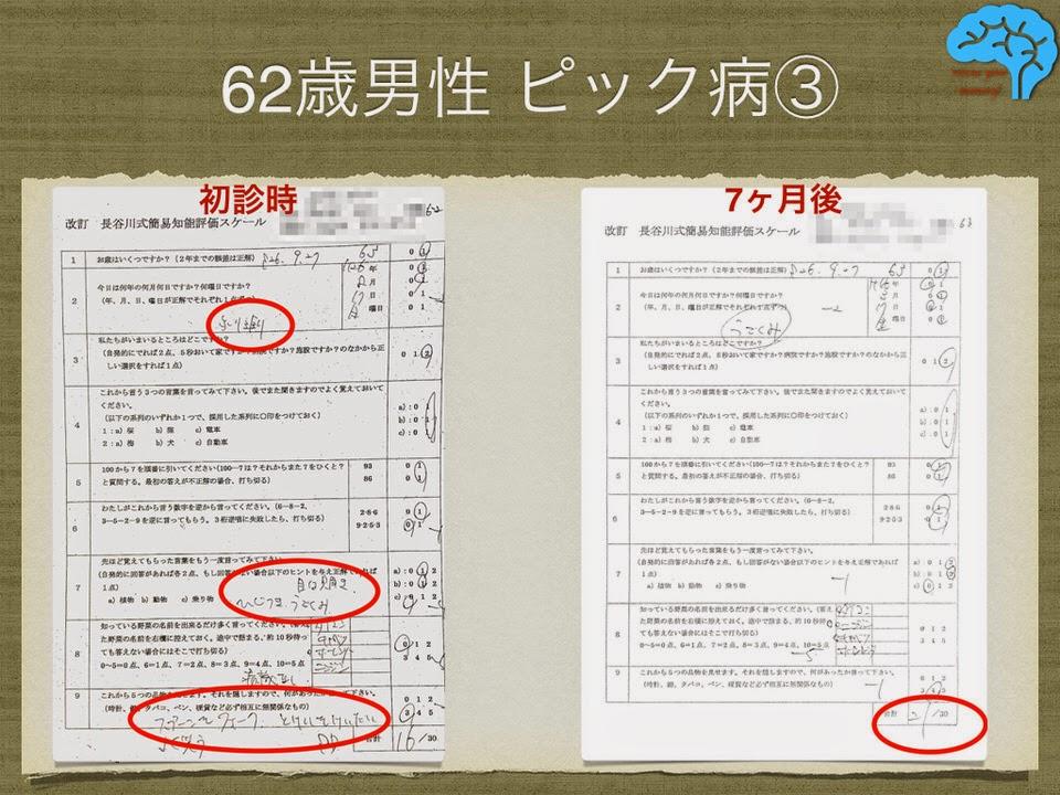 ピック病。長谷川式は7ヶ月で5点上昇。
