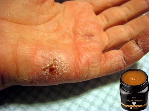 miel de thym et eczema