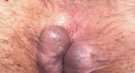Image jual obat hemmoroid