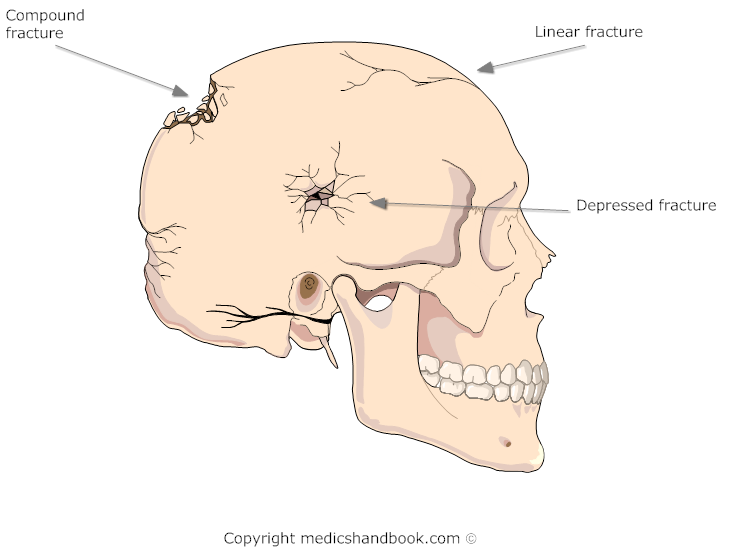 Linear Skull Fracture : Types of skull fracture treatment