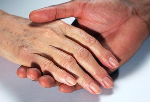 Zniszczone dłonie
