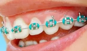 how to make fake braces with rubber bands