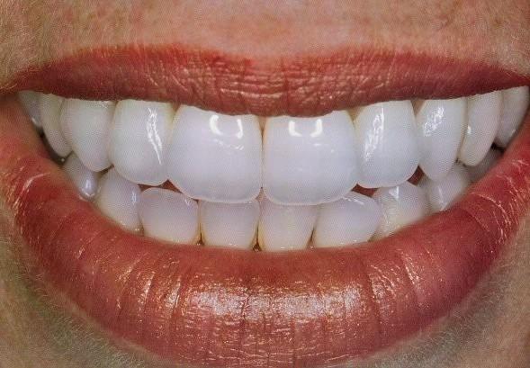 koningin beatrix tandarts