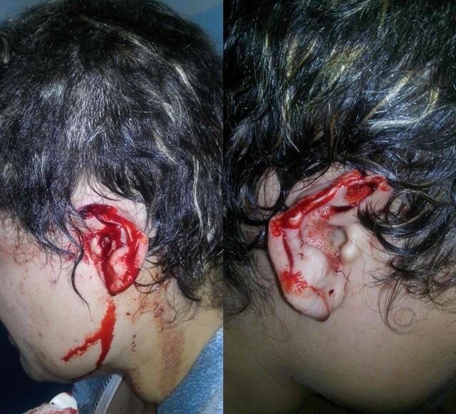 Ribeirão-PE: Mulher tem orelhas cortadas e cabelo raspado ...