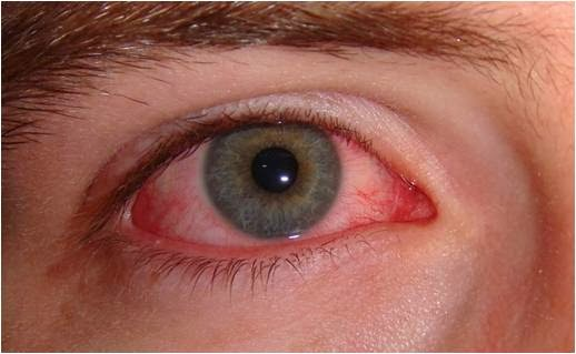 Is it Dangerous to Sleep wearing Circle Contact Lenses?