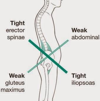 Síndrome Cruzado Inferior: zona lumbar hiperactiva y psoas acortado vs glúteos inhibidos y abdominales débiles.