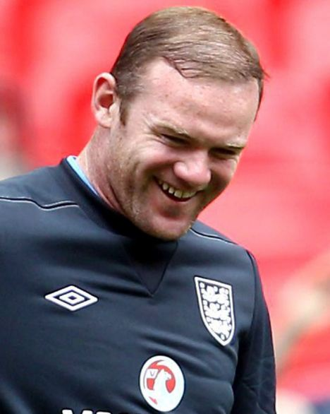 Wayne Rooney 2015 Hair Comb Over The Hair Loss Blog Hair Transplants They re Not