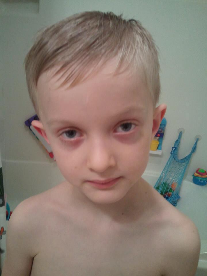 Агента ЦРУ темные круги под глазами у ребенка комаровский условия выплат