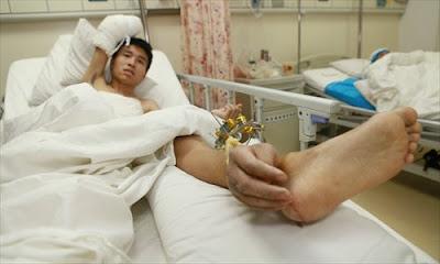 Doktor Cantum Sementara Tangan Kiri di Kaki