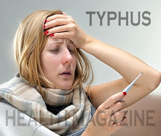 TIPS TO TREAT TYPHUS WITH EARTHWORMS
