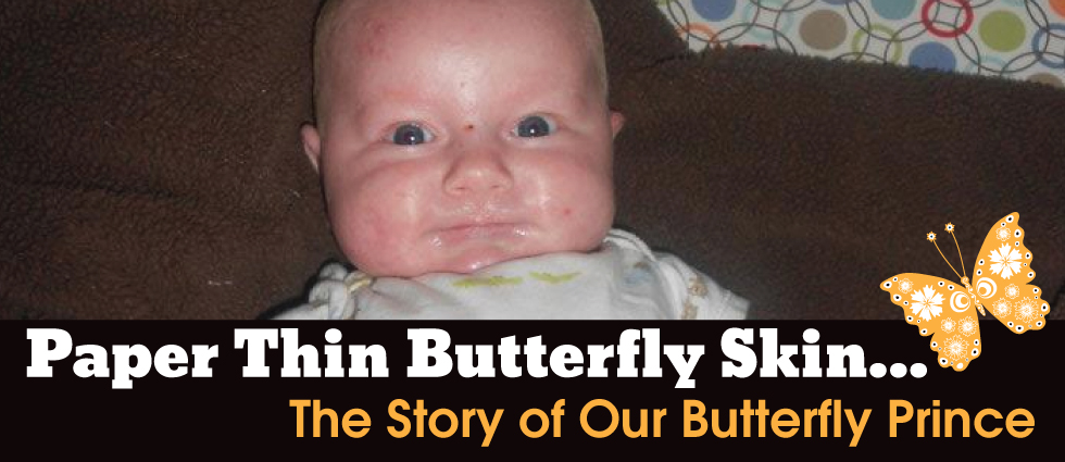 Paper Thin Butterfly Skin... The Story of Our Butterfly Prince