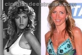 Heather Mills antes y después