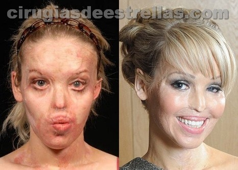 katie piper antes y despues