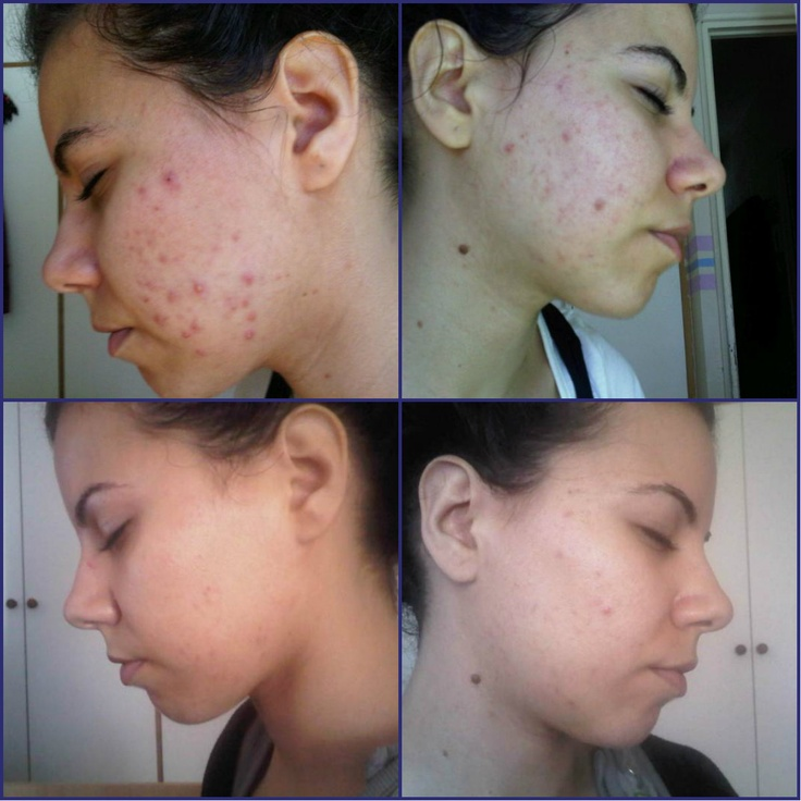 Is aloe vera good for acne scars and breakouts treatment