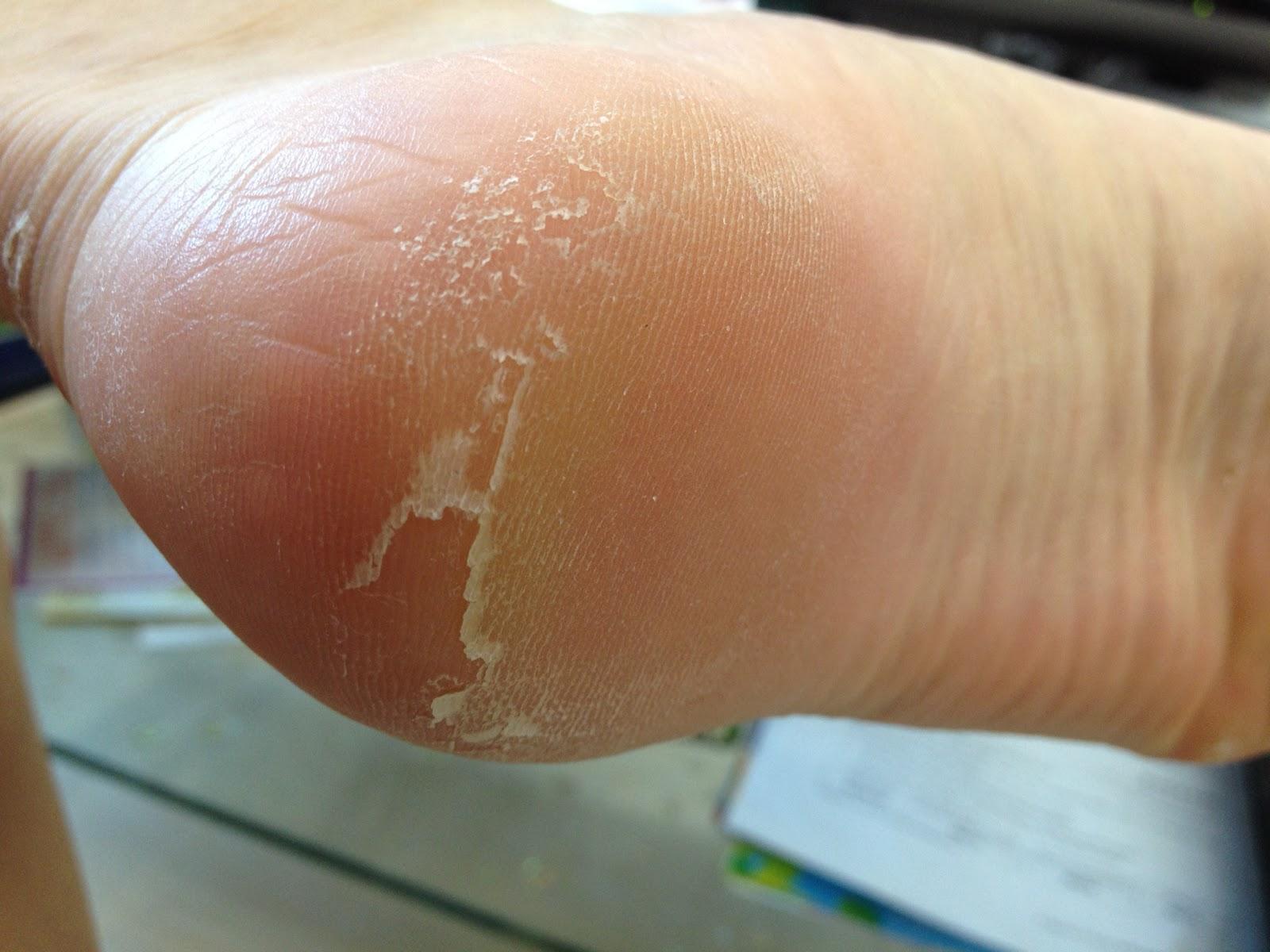 causes of peeling skin on feet