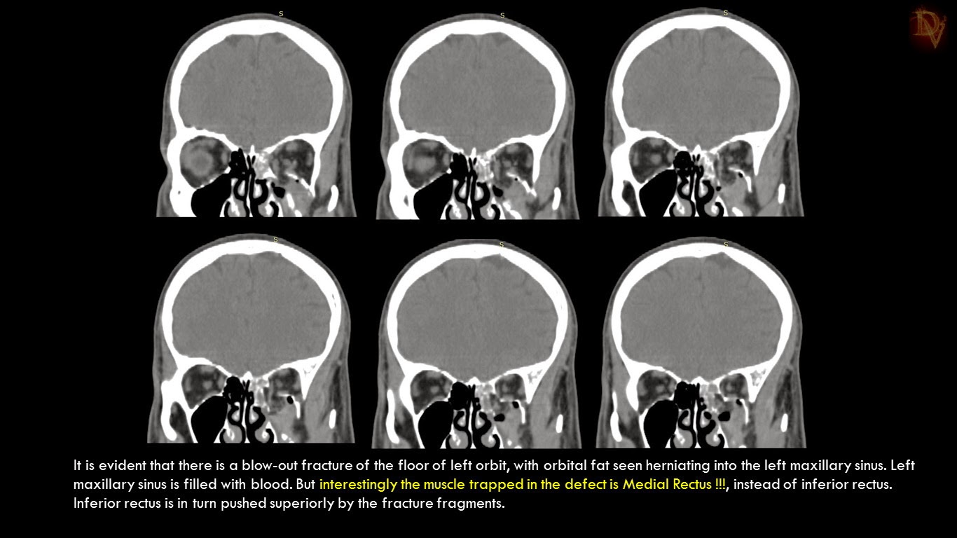 Ultimate Radiology : Orbital Blow-out Fractures