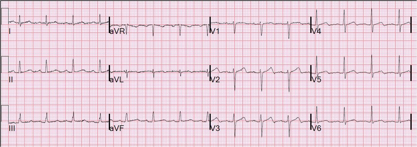 Not much changed  sc 1 st  Dr. Smithu0027s ECG Blog & Dr. Smithu0027s ECG Blog